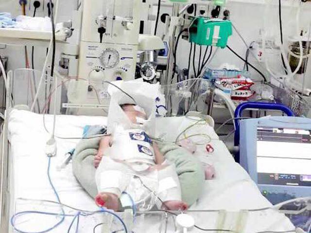 Mẹ Bình Dương vỡ gan ngay khi chuyển dạ, bác sĩ vội vàng mổ cứu thai mới hơn 8 tháng