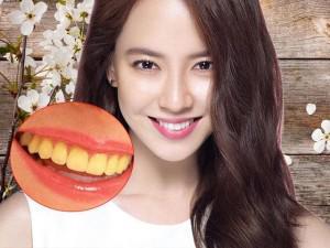 Cao răng, mảng bám, ố vàng sạch bách với 4 cách làm trắng răng từ 1 quả chanh