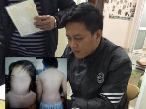 Xử vụ bố và mẹ kế đánh con 10 tuổi: Ngoài bạo hành, bố còn bắt con uống nước mắm