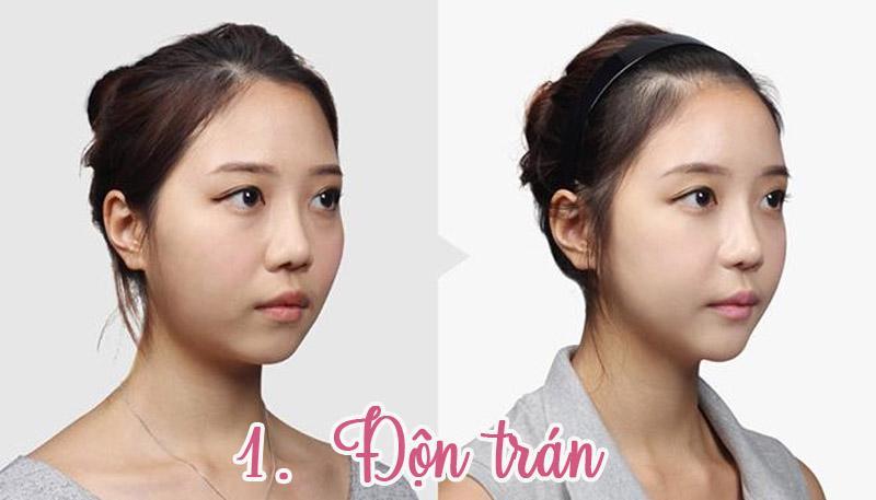 Sử dụng silicone hoặc cấy mỡ giúp trán có độ lồi nhất định mang đến nét đẹp trẻ trung.