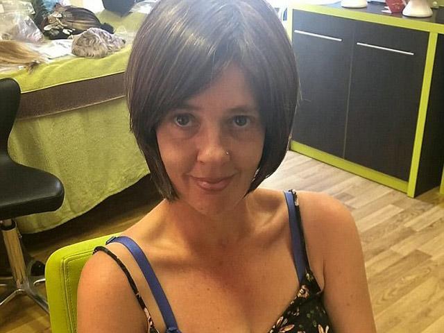 Người phụ nữ bị ung thư vú mà không hay biết cho đến khi quyết định đi giảm cân