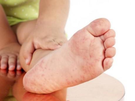 7 điều cha mẹ cần biết về bệnh tay chân miệng ở trẻ em