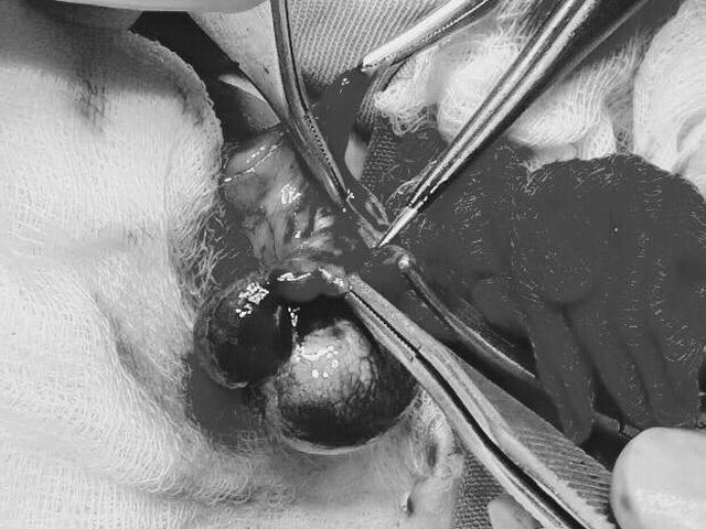 Tưởng con đau bụng thường, mẹ Hưng Yên ngỡ ngàng khi bác sĩ nói phải cắt bỏ tinh hoàn