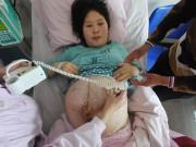 Bật khóc với tâm sự về những vết rạn trên cơ thể mẹ khiến nhiều người ghê tởm