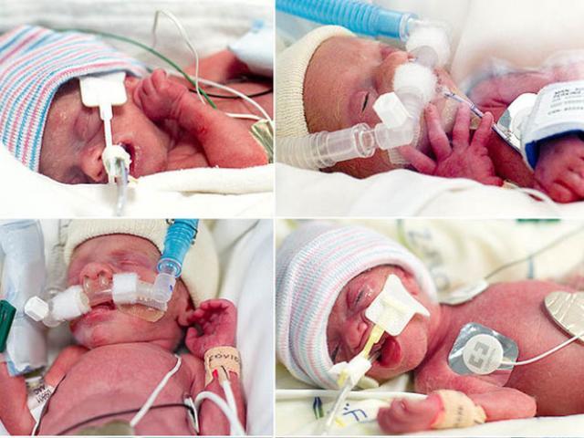 6 em bé chào đời trong ca đẻ mổ với sự giúp đỡ của 35 bác sĩ giờ ra sao?