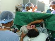 Đợi mãi không thể có thai lần 2, mẹ không ngờ nguyên nhân do lần đầu sinh mổ