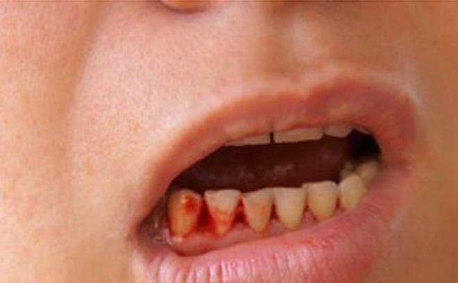 Sốt xuất huyết ở trẻ em: 5 triệu chứng phổ biến không được bỏ qua - 7