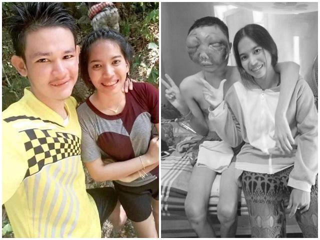 Chuyện tình cảm động của cô gái trẻ và chàng trai bị biến dạng mặt vì ung thư mắt