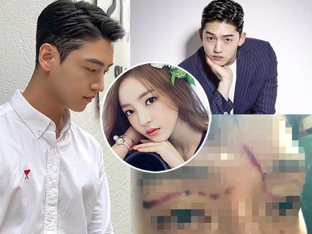 Búp bê xứ Hàn cào người yêu rách mặt, khuôn mặt điển trai giờ không ai nhận ra