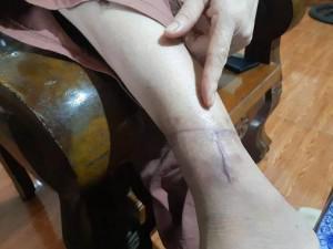 Nữ hộ lý bị chồng đánh đập dã man, dùng dao cắt gân chân chỉ vì ghen tuông