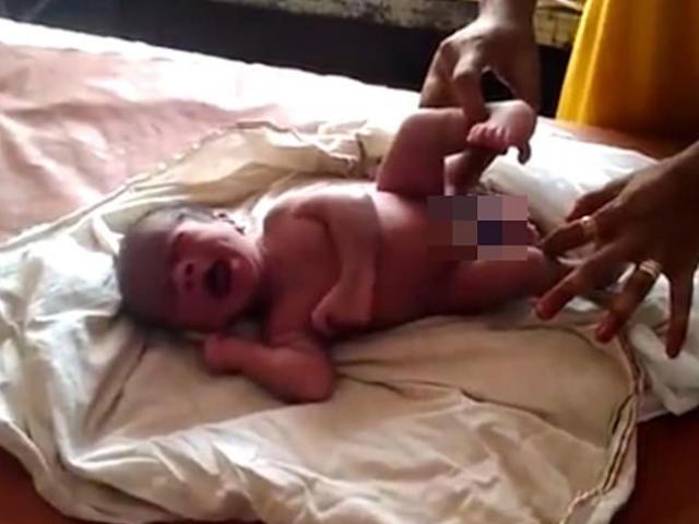 Chuyển dạ đau đớn hơn bình thường, mẹ sốc nặng khi nhìn thân hình con lúc chào đời