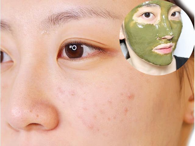 Vì sao khi bạn càng chăm sóc, làn da lại càng trở nên xấu hơn?