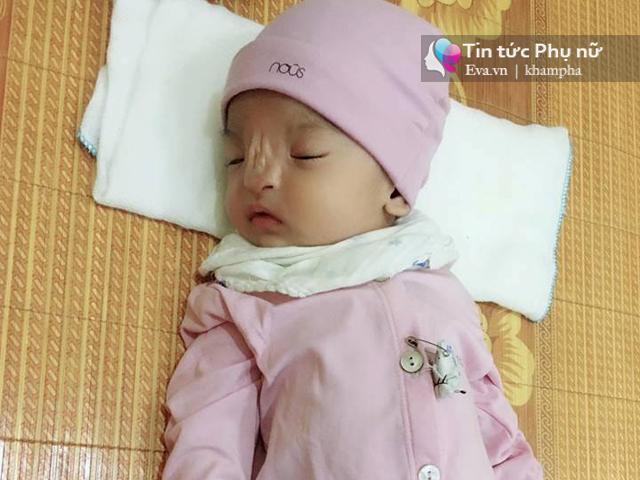Mẹ Ninh Bình quặn lòng sinh con không mũi: Cảnh báo những loại thuốc tránh dùng khi mang thai