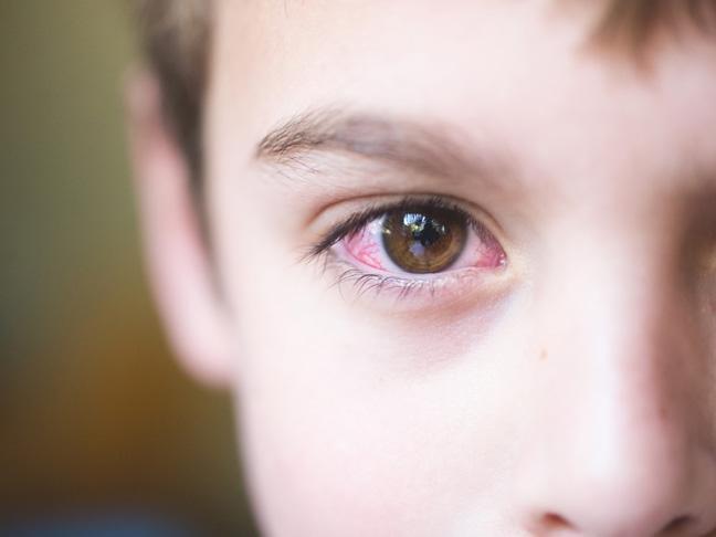 Đau mắt đỏ kiêng ăn gì? Dấu hiệu và cách chữa hiệu quả nhất - 1