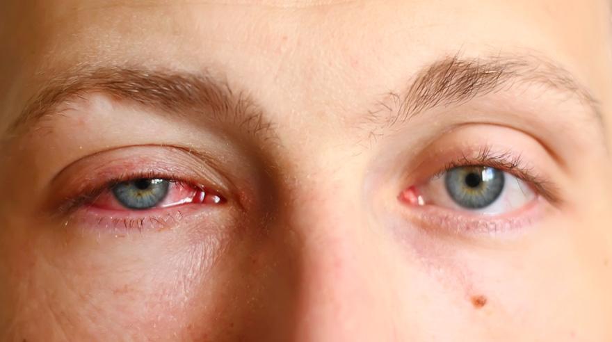 Đau mắt đỏ kiêng ăn gì? Dấu hiệu và cách chữa hiệu quả nhất - 2