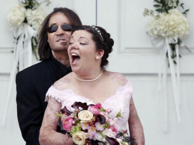 Bị vợ bỏ vì quá xấu 8 năm trước, người đàn ông không mặt bây giờ ra sao?