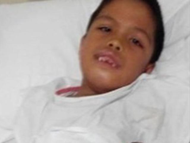 Bé trai 2 tuổi có 50 chiếc răng, 7 năm sau nhìn phim chụp khoang miệng ai cũng sững sờ