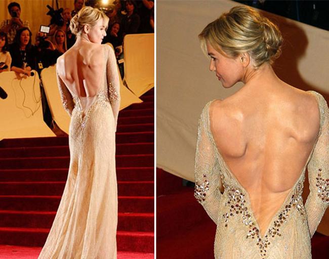 Thân hình gầy gò của Renee Zellweger gây chú ý tại bữa tiệc thời trang Met Gaga 2011. Đặc biệt là tấm lưng có những vùng bị lồi lên xấu đến khó hiểu.