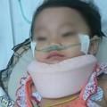 Tin tức - Xót xa bé gái 15 tháng tuổi chấn thương sọ não