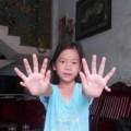 Tin tức - Kỳ lạ cô bé có 24 ngón tay, chân ở Quảng Nam