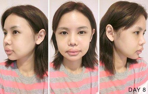 gai xau thanh hot girl sau 6 lan dao keo - 7