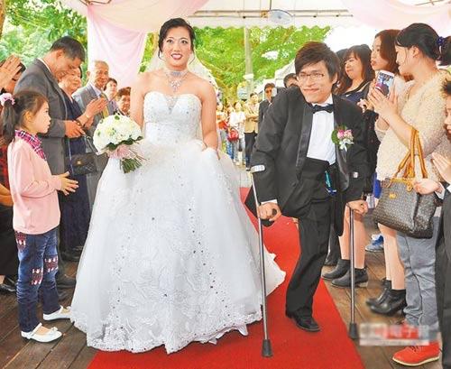 dam cuoi hanh phuc cua chang trai sinh doi dinh lien - 1