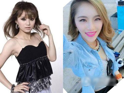 """hau qua khon luong vi """"cuong"""" phau thuat tham my - 14"""