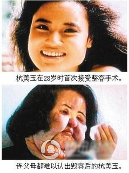 """hau qua khon luong vi """"cuong"""" phau thuat tham my - 6"""