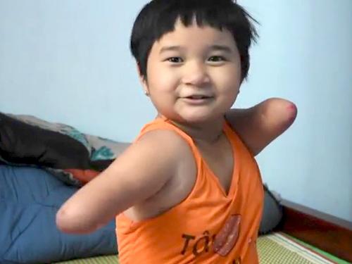 cau chuyen cam dong ve co be khong tay khong chan - 3