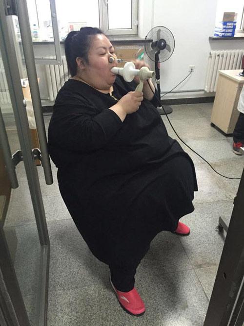 nguoi phu nu 'beo nhat trung quoc' cat da day de giam can - 5