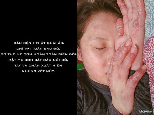 Chấp nhận căn bệnh có thể tàn phá nội tạng, mẹ Việt vẫn quyết sinh con - 4