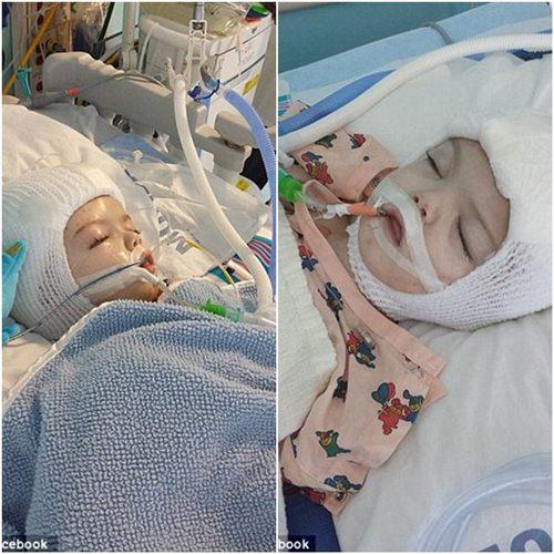 Hai bé trai song sinh liền đầu lần đầu được nhìn thấy nhau sau phẫu thuật-5