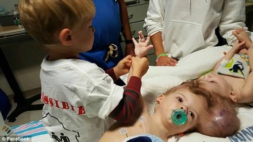 Hai bé trai song sinh liền đầu lần đầu được nhìn thấy nhau sau phẫu thuật-8
