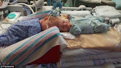 Hai bé trai song sinh liền đầu lần đầu được nhìn thấy nhau sau phẫu thuật-7