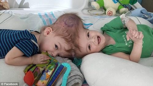 Hai bé trai song sinh liền đầu lần đầu được nhìn thấy nhau sau phẫu thuật-2