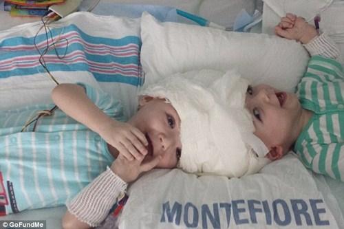 Hai bé trai song sinh liền đầu lần đầu được nhìn thấy nhau sau phẫu thuật-6