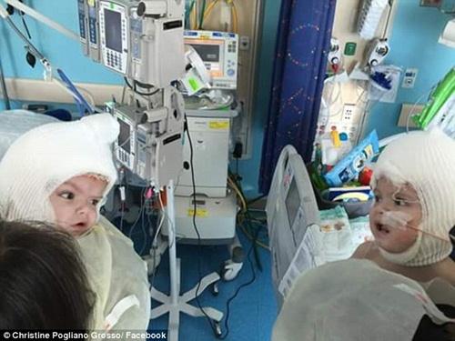 Hai bé trai song sinh liền đầu lần đầu được nhìn thấy nhau sau phẫu thuật-1