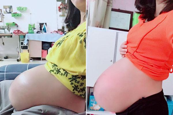 Chăm chỉ ăn vừng đen và dứa cuối thai kỳ, mẹ đẻ thường nhanh siêu tốc chỉ 26 phút - 3