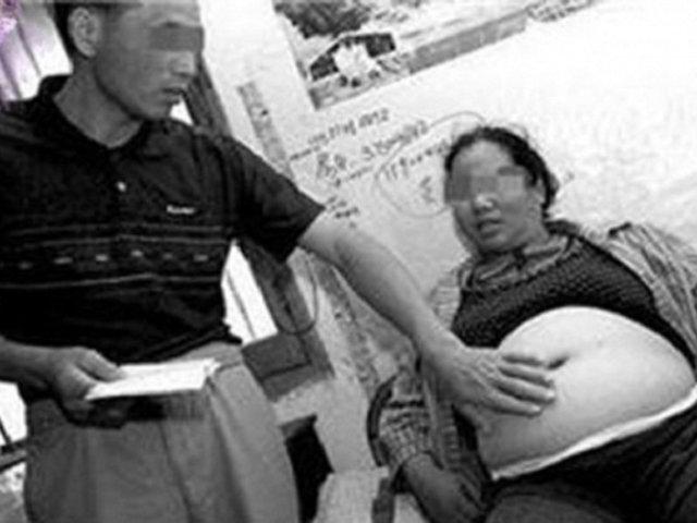Cô gái mang thai đứa con đặc biệt suốt 4 năm không đẻ và sự thật đau lòng