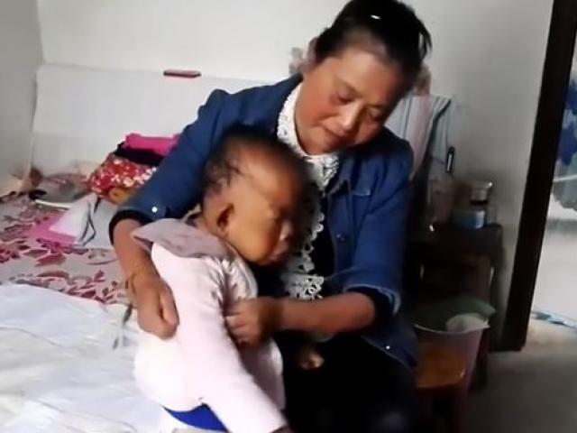Tâm sự nghẹn ngào của người mẹ có con mắc căn bệnh lạ, nuôi mãi không lớn