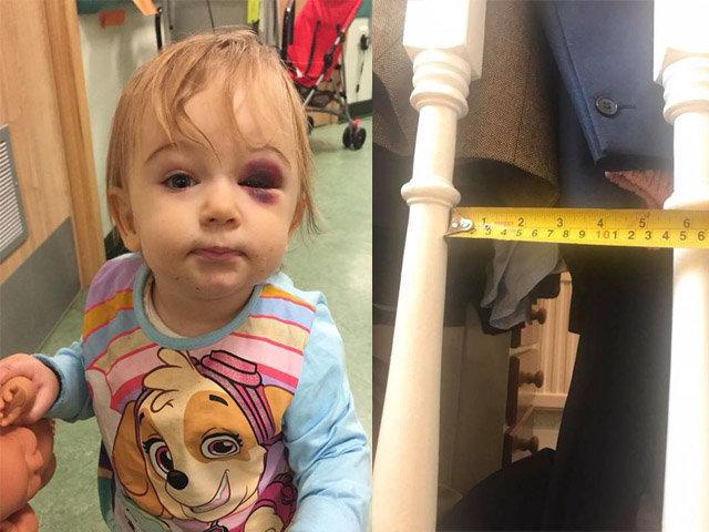 Bé gái 1 tuổi bị vỡ xương sọ vì tai nạn ít ai ngờ tới ngay trong nhà