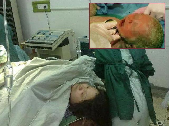 Bị ngứa nhưng bác sĩ cho thuốc không uống, bà mẹ hốt hoảng khi sinh ra con da xanh