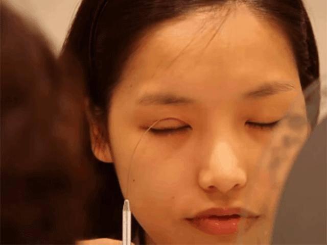 Cắt mí mắt hỏng: Do bác sĩ hãy do cách chăm sóc hậu phẫu thuật? Đâu là cách giải quyết?