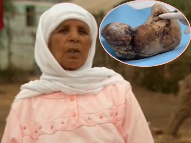 Từng chạy trốn khỏi bệnh viện vì sợ đẻ mổ, 46 năm sau mẹ sốc nặng khi thấy thai nhi