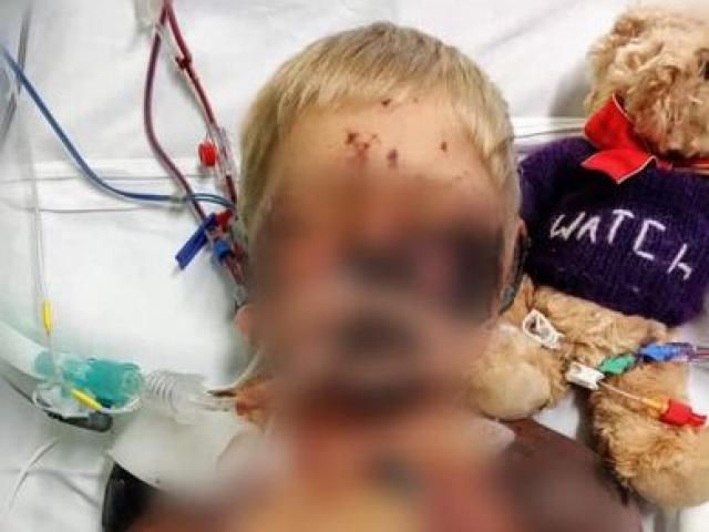 Cậu bé 4 tuổi tưởng bịcảm cúm, không ngờ mắcbệnh nguy hiểm,chết sau 13 ngày nằm viện