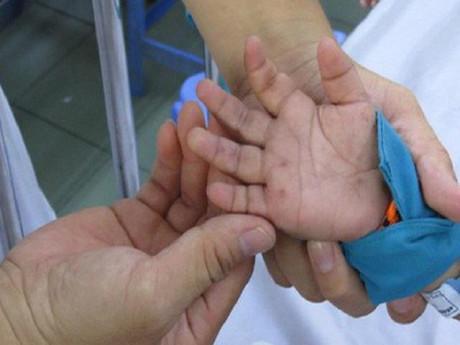 Trẻ mắc chân tay miệng ngày càng nặng có thể do phạm phải những sai lầm này
