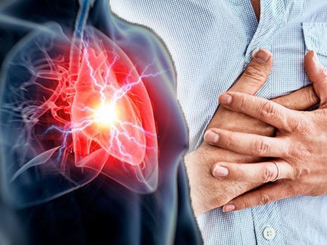 Nhồi máu cơ tim là gì? Cách sơ cứu khi gặp phải