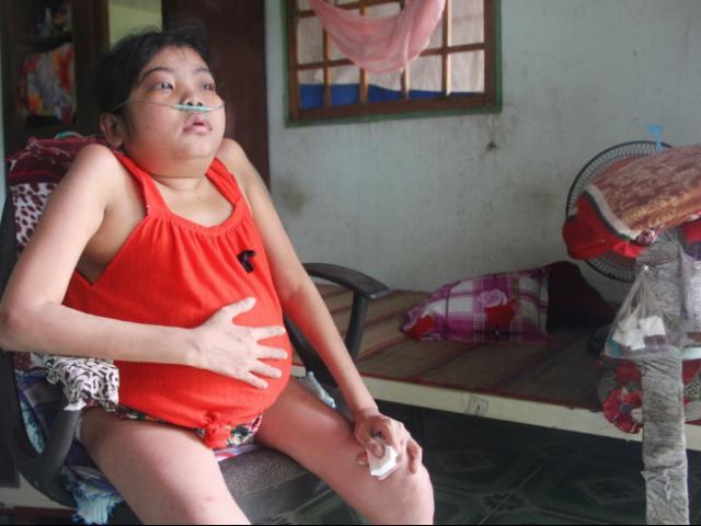 Cô gái vác chiếc bụng to tướng suốt 12 năm, bị ám ảnh Nếu không truyền máu, nó sẽ chết