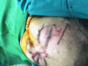 Bé 31 tháng tuổi bị chó nhà cắn nhiều nhát vào mặt, phải nhập viện cấp cứu