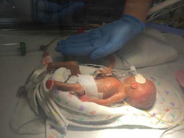 Hình ảnh mới nhất của bé sinh non ở tuần 25 do mẹ bị tiền sản giật, chỉ nặng 0,5kg